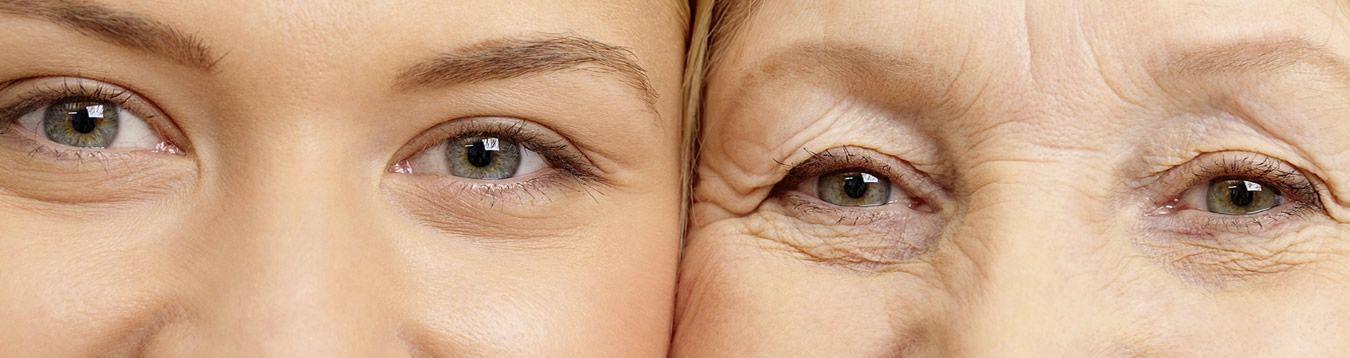 Wrinkles & Aging